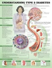 UNDERSTANDING TYPE 2 DIABETES POSTER (66x51cm) ANATOMICAL CHART NEW EDUCATIONAL
