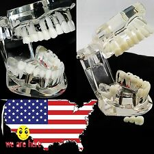 transparent Dental Implant Disease Teeth Model with Restoration & Bridge Tooth