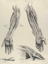 Framed Vintage Medical Print – The Human Arm (Picture Anatomy Pathology Art)
