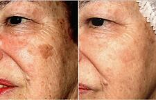 Dr Rong Chinese Herbs Wrinkles Aging Sun Spots Blemish Cleansers Women 10g Unit