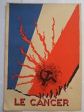 PAUL IRIBE LE CANCER 1934 GRAVURE ORIGINALE ART DECO sur bois couleurs