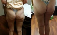 Ultimate Cellulite Kit**See Results in 2-3 days**Made By Esthetician in Salon**