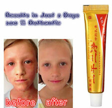Herbal Medicine Effective cream Eczema Rash Psoriasis Dermatitis Skin Treatment