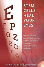 Stem Cells Heal Your Eyes : Prevent and Help: Macular Degeneration, Retinitis...