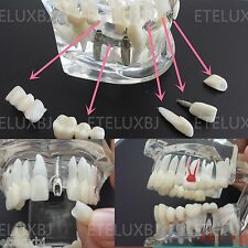 Free shipping Dental Implant Disease Teeth Model with Restoration & Bridge Tooth