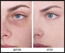 LOWEST PRICE CREAM  Anti Age Spots, Sun Spots, Pigmentation Freckles best result