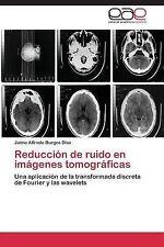 Reduccion de Ruido en Imagenes Tomograficas by Burgos Diaz Jaime Alfredo...