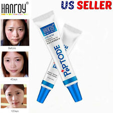 HANROY Anti Acne Treatment Cream Skin Care Blemish Face Scars Removal