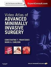 Video Atlas of Advanced Minimally Invasive Surgery: Expert Consult - Online and