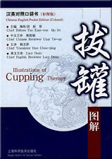 Illustrations of Cupping Therapy - (Chinese to English 拔罐图解 NEW)