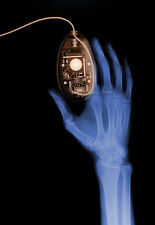 Art Poster - Hand and Computer Mouse - X Ray - Xray  A3 Print