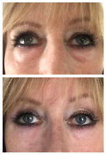 Instant Wrinkle Serum- Alternative to facelift! FORMULATED FOR DARKER SKIN TONES