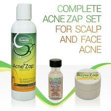 TREATMENT for Head Face Pimples ACNE ZAP Shampoo, Drying Lotion, Medicated CREAM