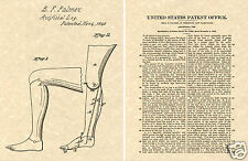 1st US PATENT of PROSTHETIC LEG Art Print READY TO FRAME!!! reproduction