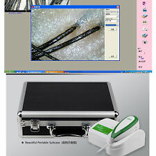 Portable 5.0MP HD USB Hair Scalp Scope Hair Diagnosis analyzer camera 200X Lens