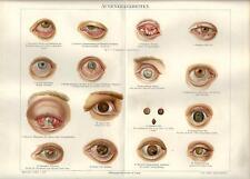 Stampa antica ANATOMIA OCCHIO MALATO Oculistica Medicina 1890 Old antique print