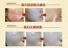 Herbs Face Care Mask Cream Remove Acne Scar Pimple Blackhead Whitening Treatment