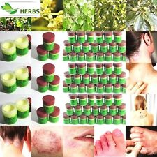 12x7.5g Eczema Cure Tinea Dermatitis Ointment Psoriasis100%NATURAL Herbal Cream