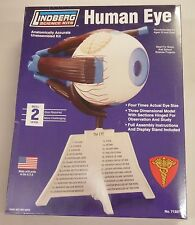 Lindberg 11 Inch Human Eye Anatomy Model Kit