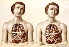 Francis Sibson científica Anatomía Reproducción Impresa Sobre A4 Lona De Papel