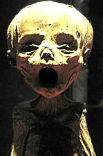 Framed Print - Freaky Mummified Alien Baby's Remains (Picture Mummy UFO Art)