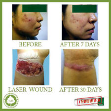 ***** Best SCAR REMOVAL cream for ACNE SCARS / MARKS/ BURN on FACE & BODY *****