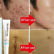 FD3787 Nuobisong Removal Acne Scar Stretch Marks Cream Treatment Face Care♫