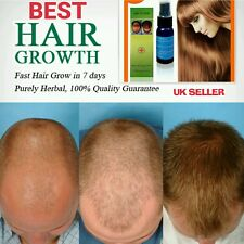 Yuda-No1 Fast Hair growth serum oil 100% Natural Extract Effective Result UK