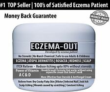 EczemaOut Cream 4oz Eczema Psoriasis Rosacea Atopic Dermatitis Sever Dry skin