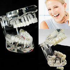 USA Dental Pathological Implant Disease Teeth Model W Restoration & Bridge Tooth