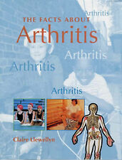Llewellyn, Claire Arthritis (Facts About) Very Good Book