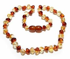 Genuine Baltic Amber Baby Necklace Cognac Honey 11.8 - 12.6 in Amber Beads