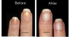 LOWEST PRICE hardener nails whitening lightens nails eliminates discolorations