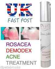 PURE Face Lotion ROSACEA TREATMENT - Demodex Zinc Oxide Sulphur Liquid Solution