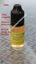 10ml Mole, Skin Tag, Wart Remover *BEST SELLING on Ebay  (It Works!)