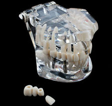 Dental Implant Disease Teaching Teeth Model with Restoration & Bridge Tooth NEW
