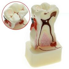 Dental Leb Teeth Comprehensive Disease Study Teaching Tooth Model #4015