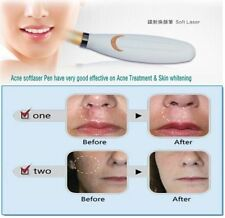 Therapy Acne Pen Soft Scar Wrinkle Blemish Removal Light LLLT Skin Treatment