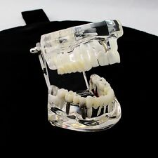 Dental Implant Teeth Repair Model with Restoration &Bridge Tooth Training study