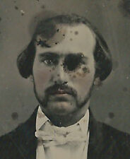 CIVIL WAR ERA AMBROTYPE PHOTOGRAPH MAN WITH MISSING EYE?