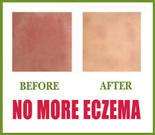***** Get rid of ECZEMA or DERMATITIS or ITCHY SKIN FAST NOW !!! *****