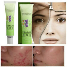 Plant Element Remove Vanishing Pimples Spot Black Head Acne Treatment Cream GL