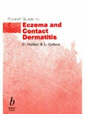 Pocket Guide to Eczema and Contact Dermatitis-ExLibrary