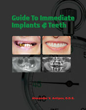 Guide To Immediate Dental Implants Teeth Professional Health Education Paperback