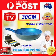 30CM BLUE STONE MARBLE COATED NON STICK FRY PAN COOKWARE INDUCTION