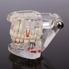 Dentist Dental Implant Disease Teeth Model with Restoration & Bridge Tooth Study