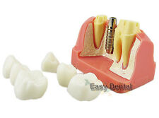 Dental Implant Study Analysis Crown Bridge Demonstration Teeth Model - NEW