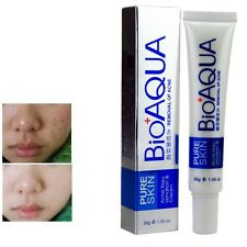 NEW Face Skin Care Removal Cream Acne Spots Scar Blemish Marks Treatment