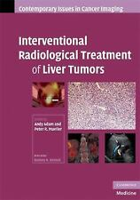 Interventional Radiological Treatment of Liver Tumors (Contemporary Issues in Ca