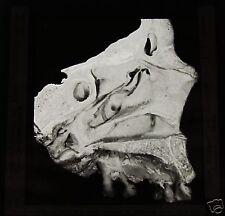 Glass Magic lantern slide HUMAN SKULL AUTOPSY DATED 1911 . MACABRE MEDICAL NO2